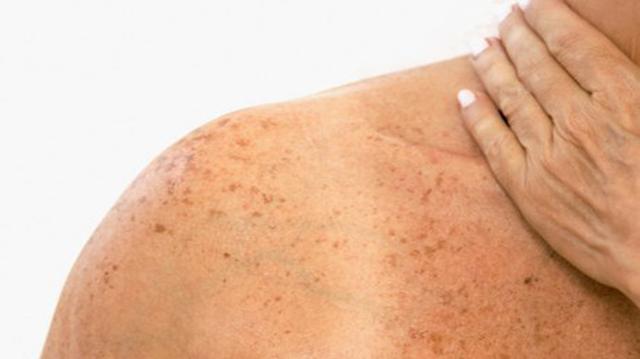 Pesquisa entre 1999 a 2003, mostra crescimento do câncer de pele em Brusque