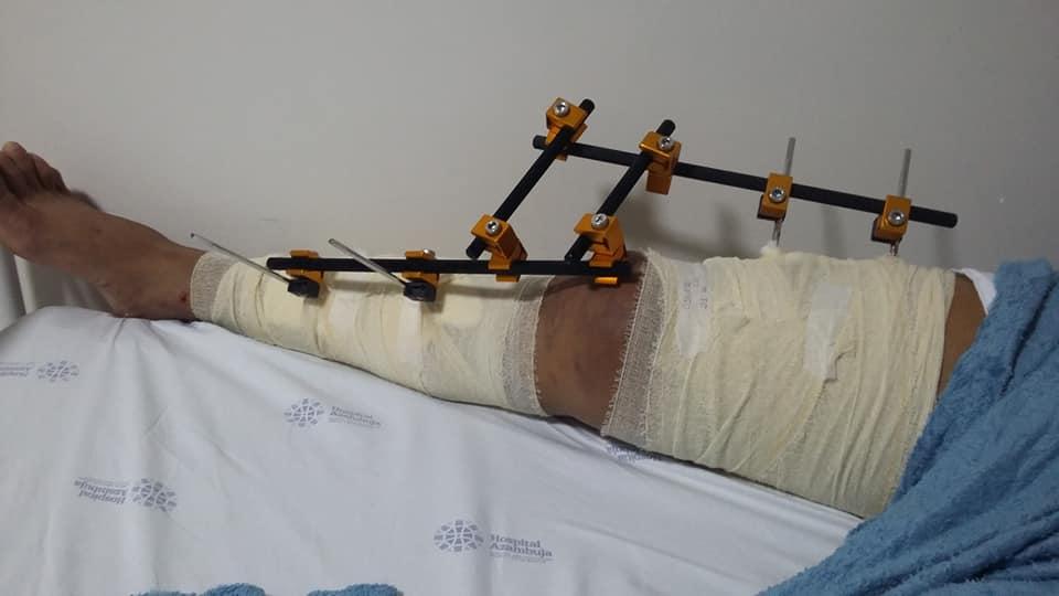 Francisco Gomes está em recuperação no hospital após cirurgia (Foto: Divulgação/Arquivo Pessoal)